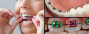 collage_of_3_different_types_of_braces