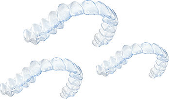Invisalign Treatment Step 3