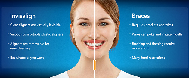 Invisalign Teen vs Braces
