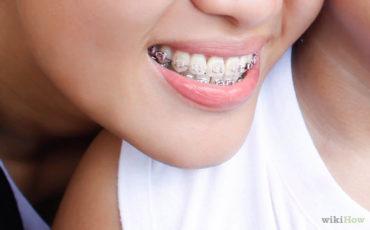 Best Ways to Relieve Soreness from Braces