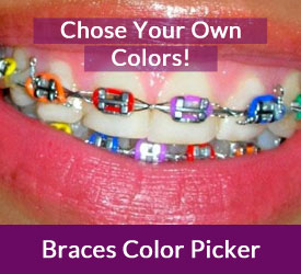 braces color picker