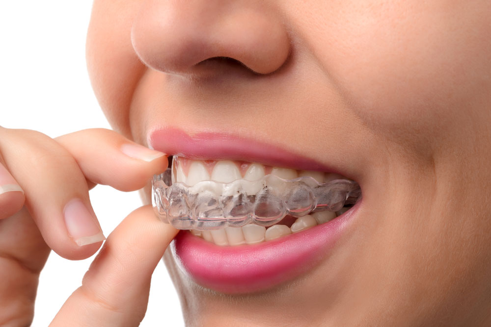 speed up invisalign