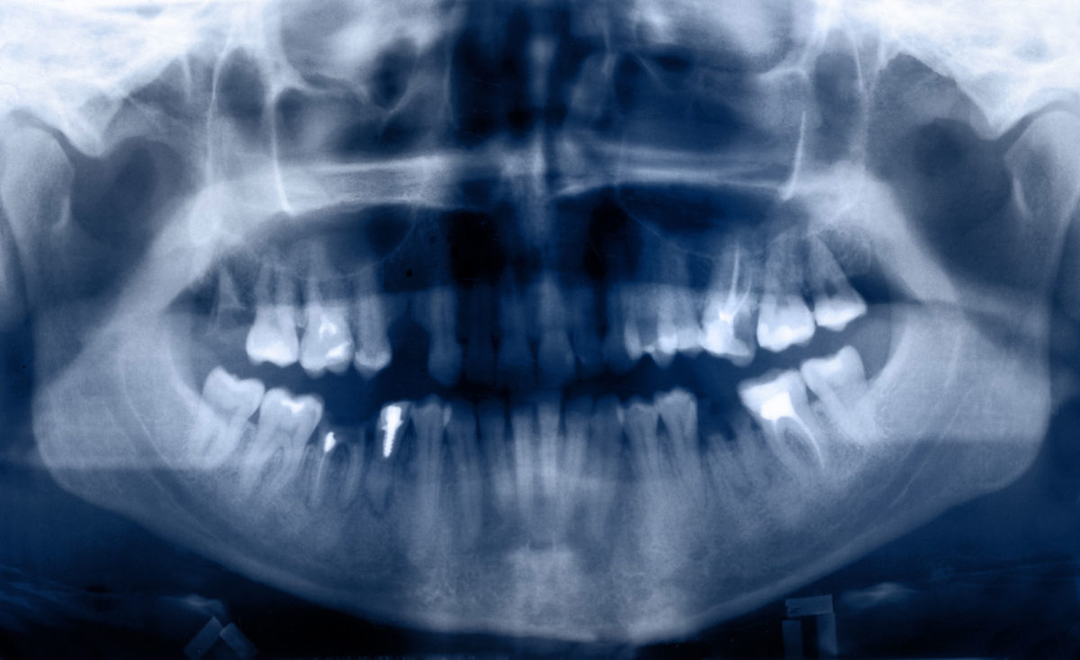 are-orthodontic-xrays-safe