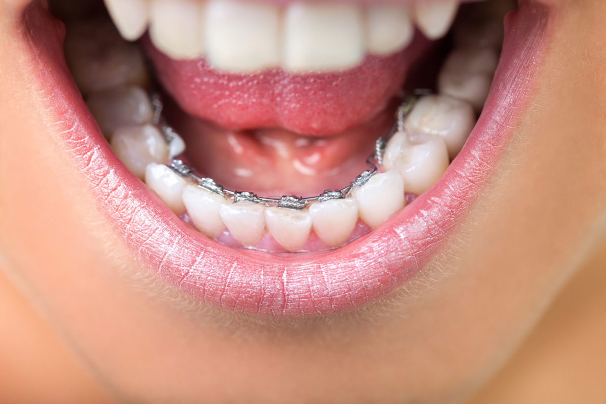 How much to wear braces on teeth to align teeth