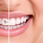 braces-aesthetics