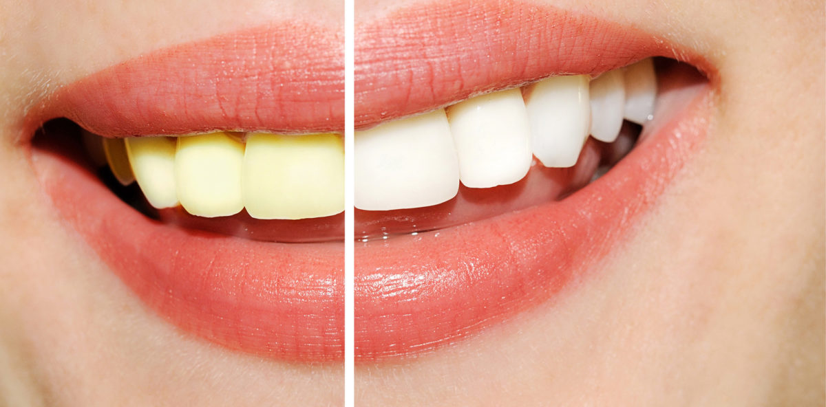 Natural Teeth Whitening Myths That You Should Know About