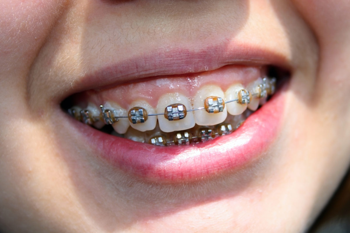 8 Simple Techniques For How Long Do Braces Last