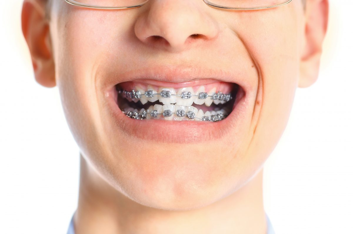 Not known Facts About Comfort Dental Braces
