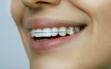 Your Guide to Wearing a Retainer