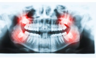 What You Need to Know About Impacted Wisdom Teeth and Braces